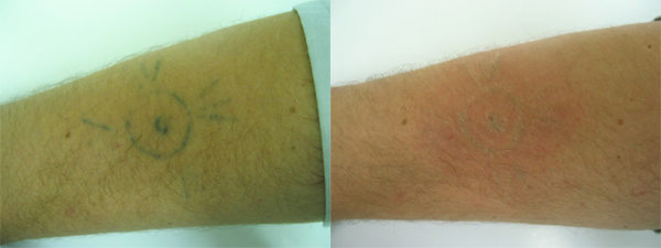 Tattoo Removal: Before & After (Amateur Tattoo)