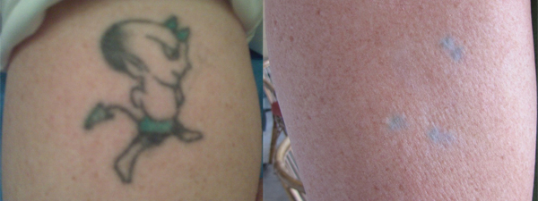 Tattoo Removal: Before & After (Little Devil)