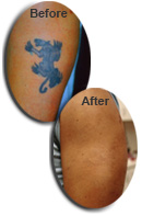 Tattoo Removal Results with NaturaLase QS