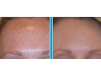 NaturaLase QS Laser Pigmented Lesion Removal